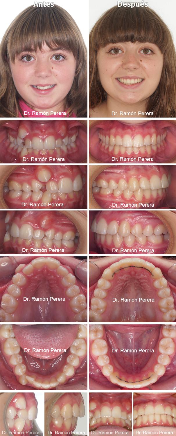 Caso de ortodoncia resuelto con Sistema Damon en Ortodoncia Perera
