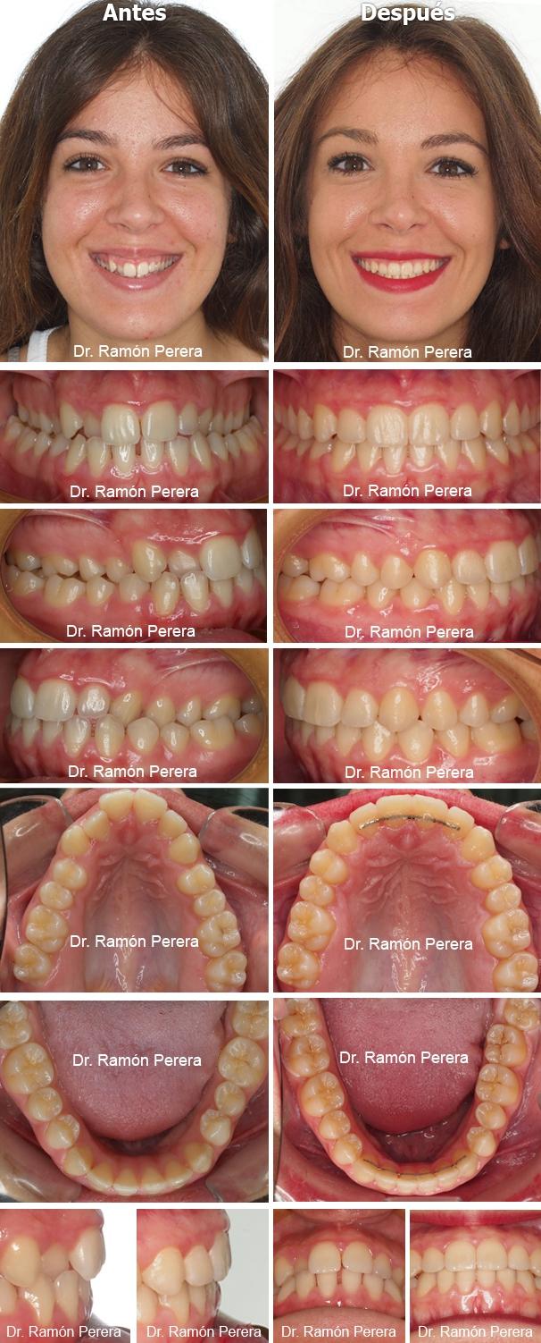 ortodoncia brackets albacete compresión de las arcadas