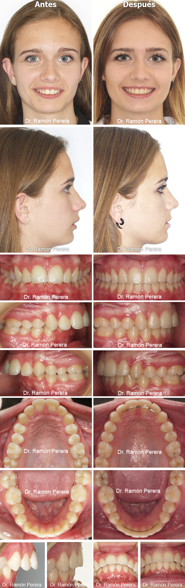 Clase II por déficit mandibular