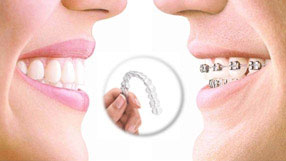 tecnica ortodoncia 2