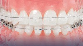 tecnica ortodoncia 3