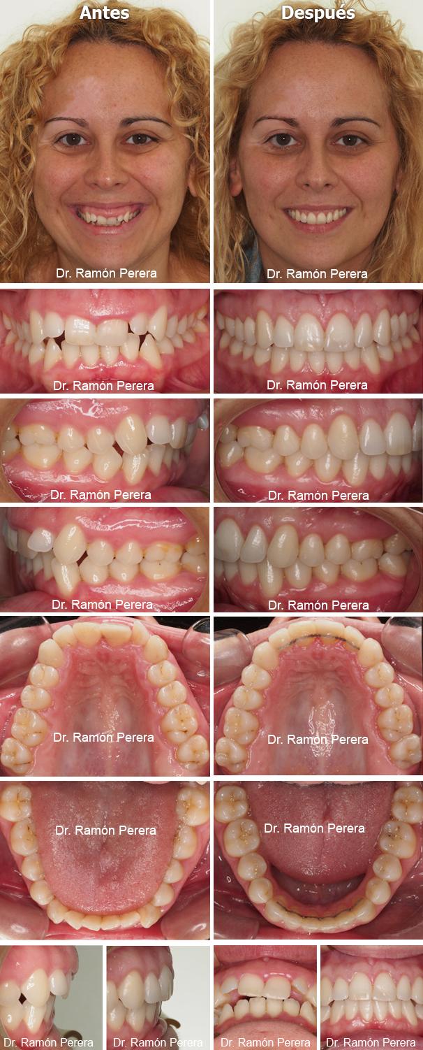 Sonrisa gingival tratamiento sistema Damon